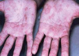 syphilishands (15k image)